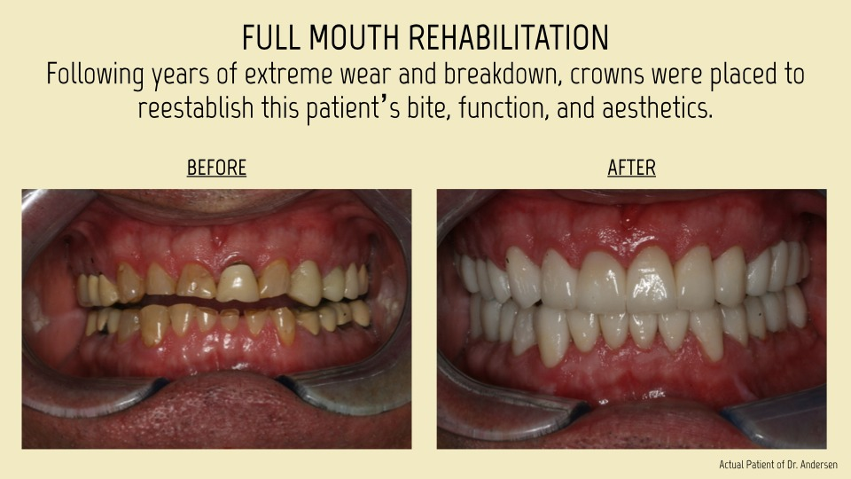 Full mouth rehabiliation