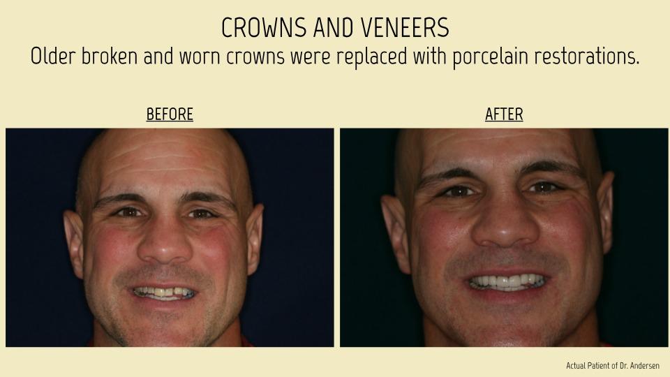 Crown and veneers patient
