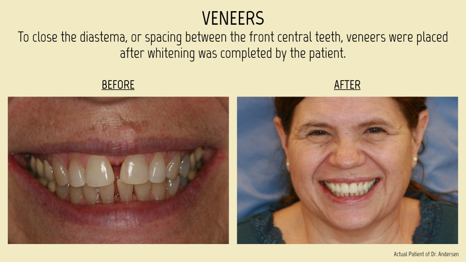 Tina MandavilleVeneers showing the concept of Smile Gallery