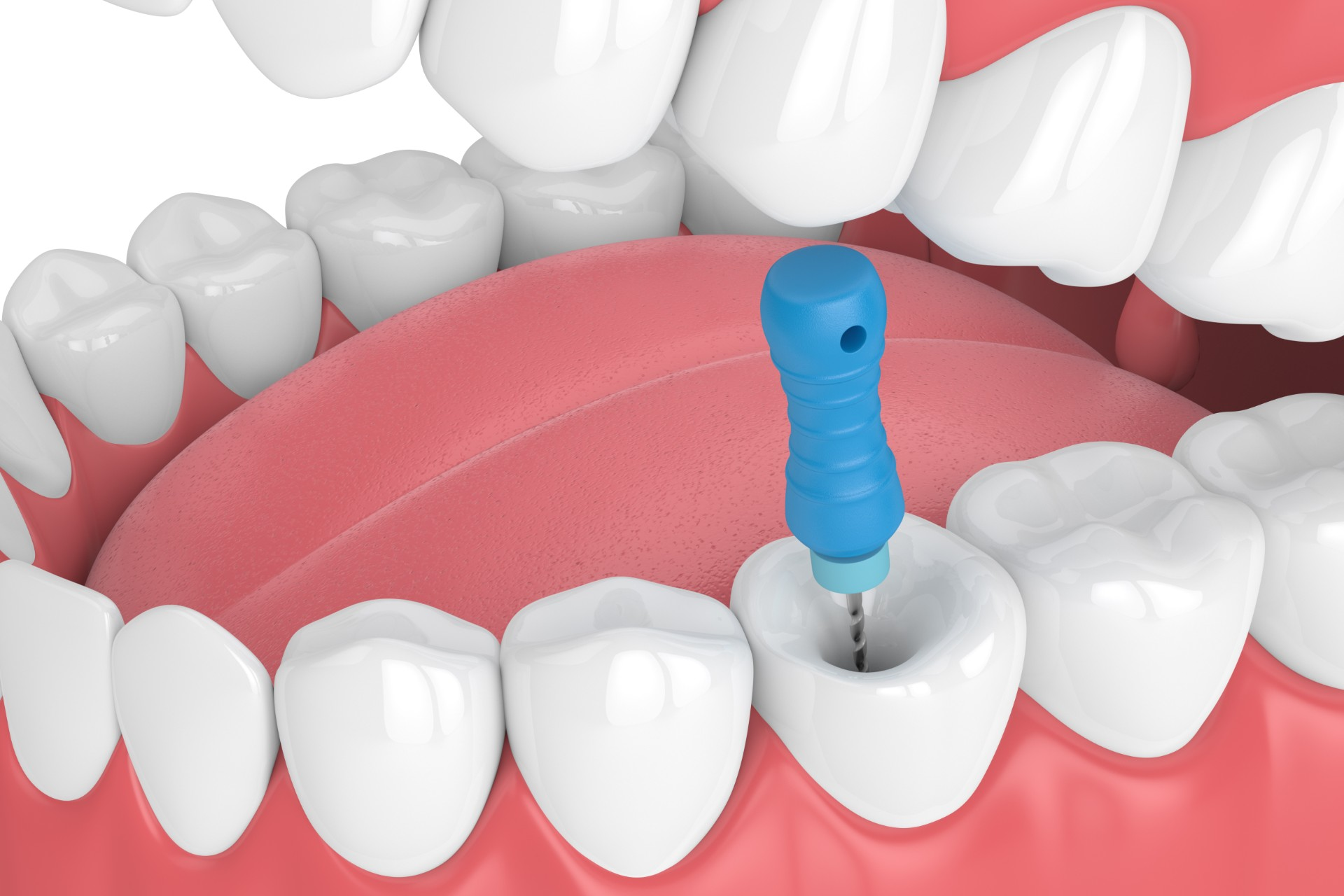 Root canal treatment concept