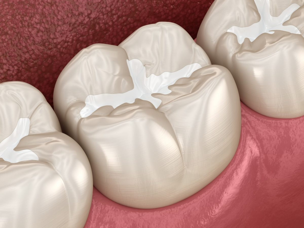 Composite Tooth-Colored Fillings - Artisan Dental