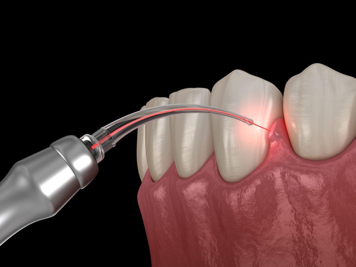 Laser Gum Sculpting - Artisan Dental