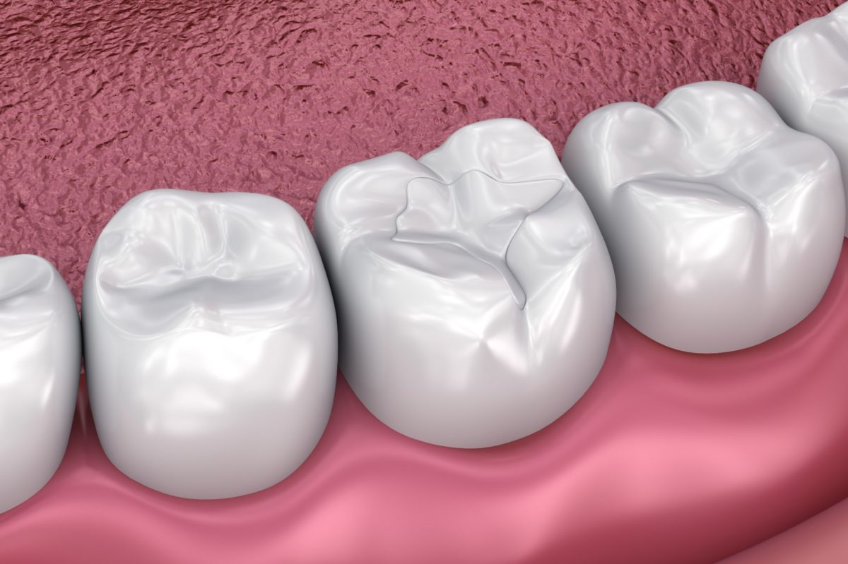 Dental Sealants - Artisan Dental