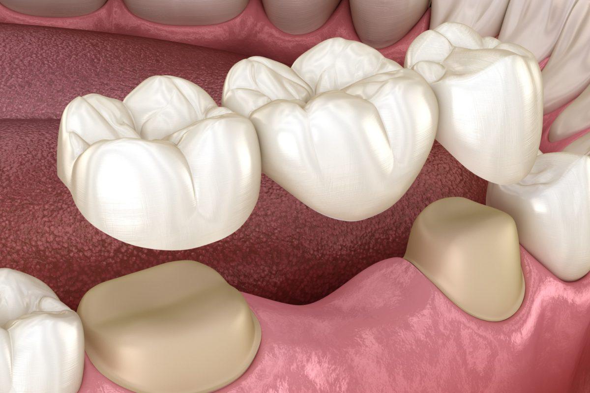 Dental crown installation process