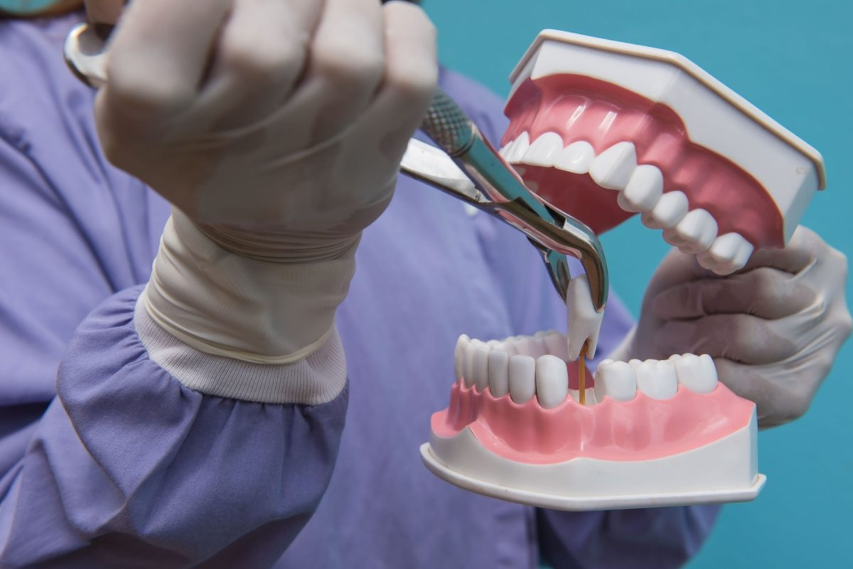 Tooth extraction by doctors