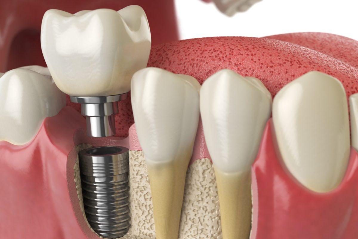 Tooth dental implant in human dentura
