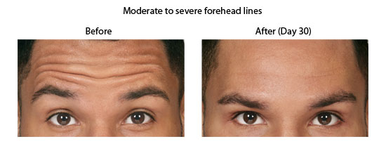 Moderate to severe forehead lines