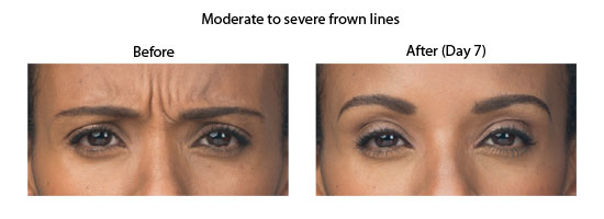 ava2 showing the concept of Botox For Esthetics & Cosmetics